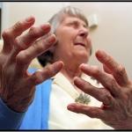 โรคข้ออักเสบรูมาตอยด์ (Rheumatoid arthritis)